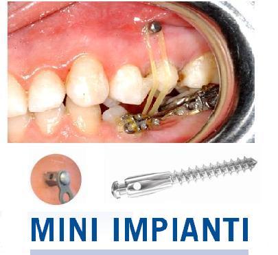 Pedido Cursos. Mini Implantes para Ortodoncia.