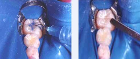 Pedido Endodoncia
