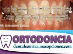 Ortodonica